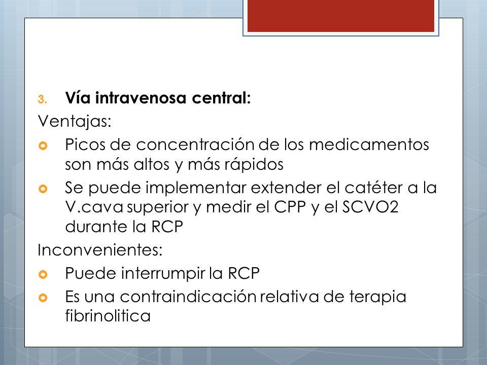 Vía intravenosa central: