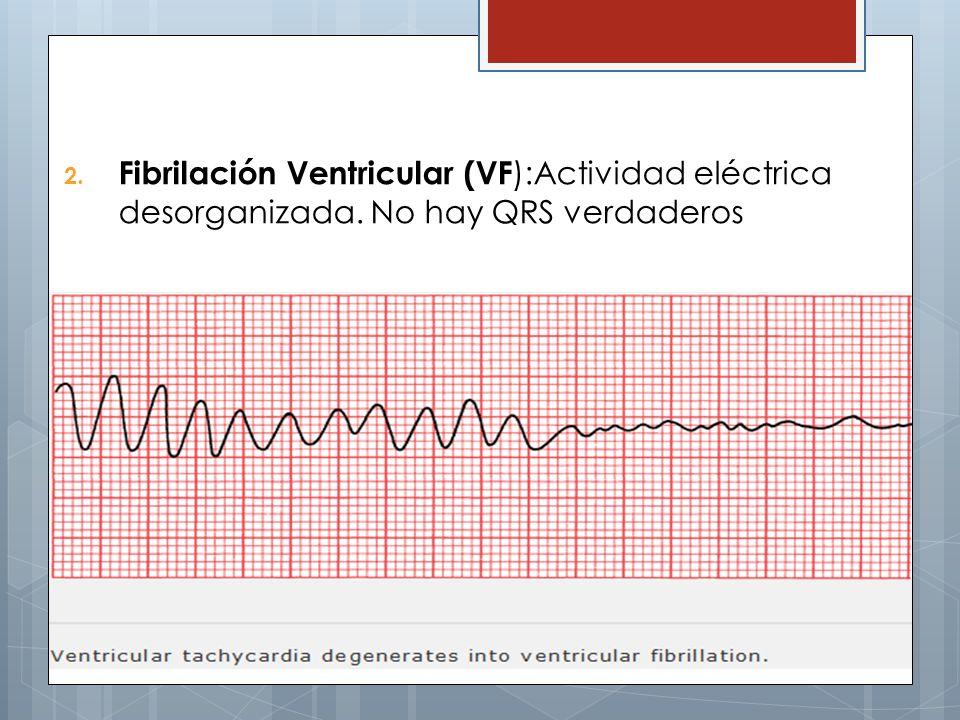 Fibrilación Ventricular (VF):Actividad eléctrica desorganizada