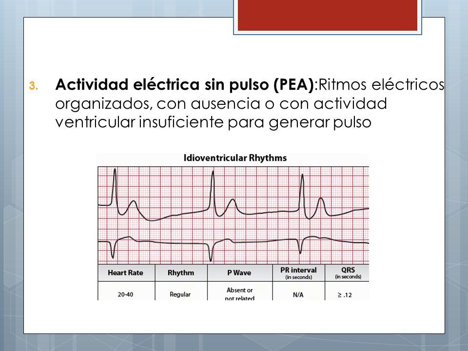 Actividad eléctrica sin pulso (PEA):Ritmos eléctricos organizados, con ausencia o con actividad ventricular insuficiente para generar pulso