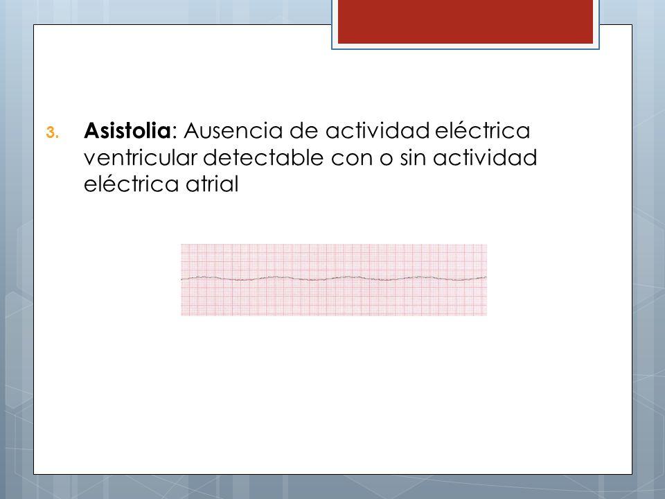 Asistolia: Ausencia de actividad eléctrica ventricular detectable con o sin actividad eléctrica atrial