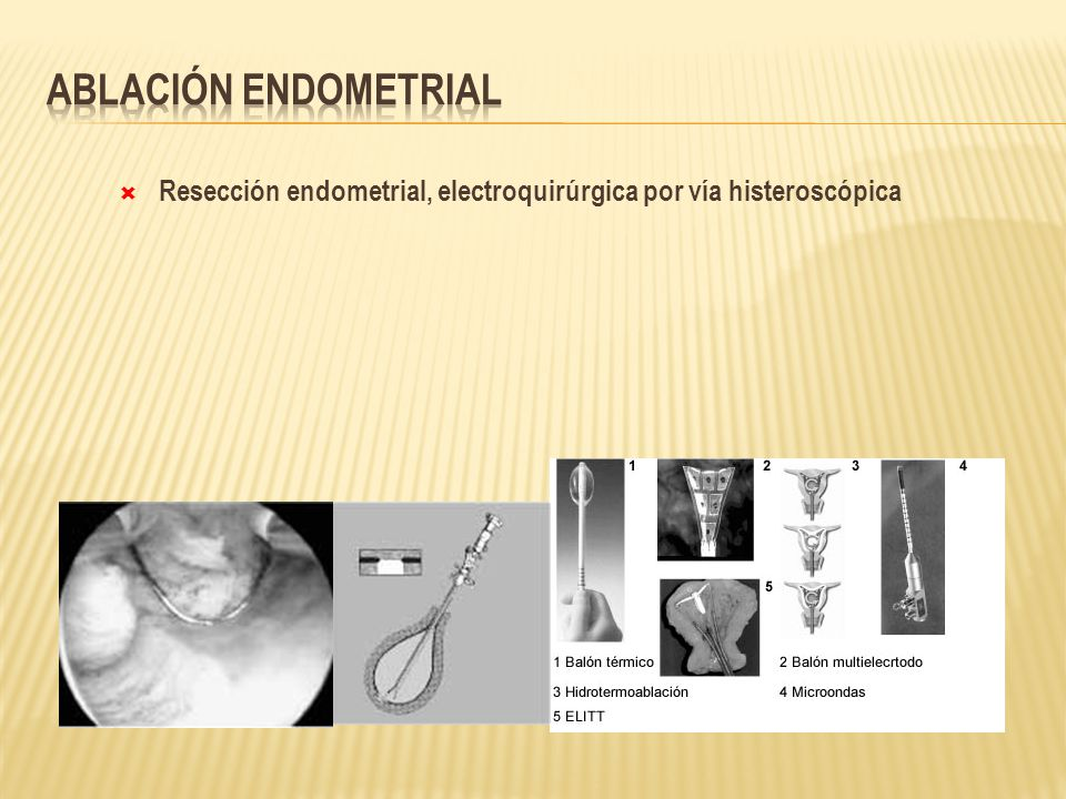 Ablación endometrial Resección endometrial, electroquirúrgica por vía histeroscópica