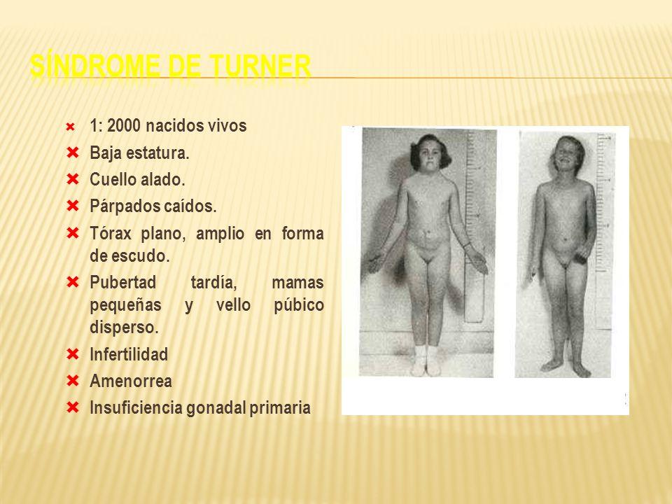 Síndrome de Turner 1: 2000 nacidos vivos Baja estatura. Cuello alado.