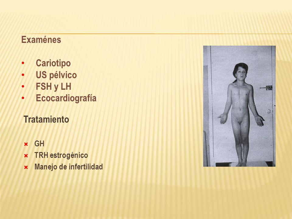 Examénes Cariotipo US pélvico FSH y LH Ecocardiografía Tratamiento GH