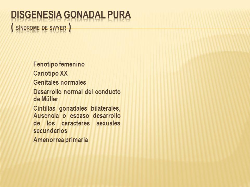 Disgenesia gonadal pura ( Síndrome de Swyer )