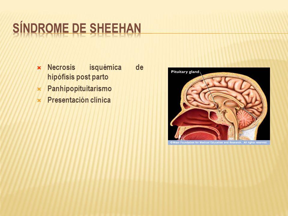 Síndrome de Sheehan Necrosis isquémica de hipófisis post parto