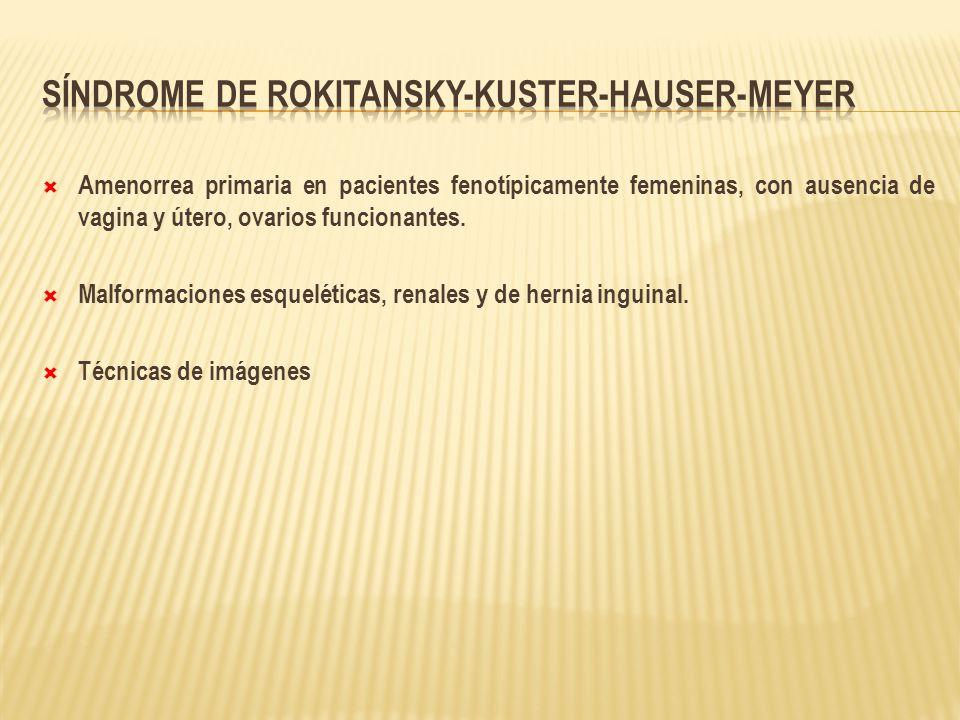Síndrome de Rokitansky-Kuster-Hauser-Meyer