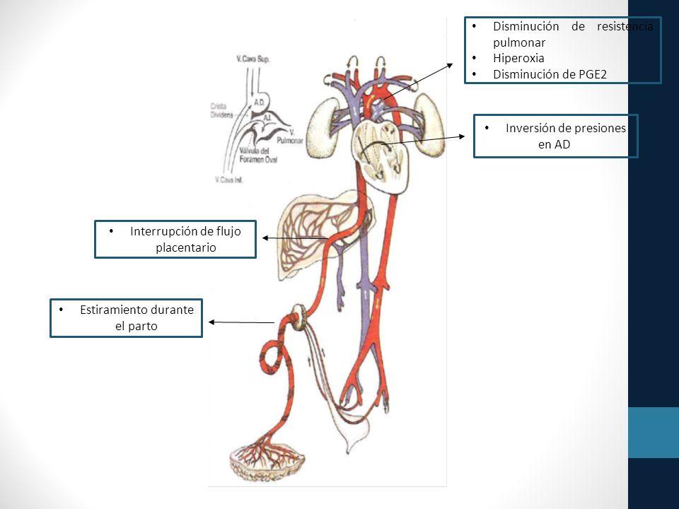 Disminución de resistencia pulmonar Hiperoxia Disminución de PGE2