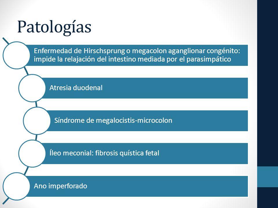 Patologías Enfermedad de Hirschsprung o megacolon aganglionar congénito: impide la relajación del intestino mediada por el parasimpático.
