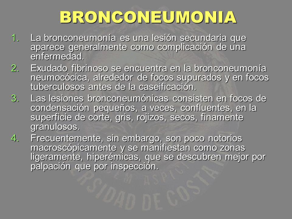 BRONCONEUMONIA La bronconeumonía es una lesión secundaria que aparece generalmente como complicación de una enfermedad.