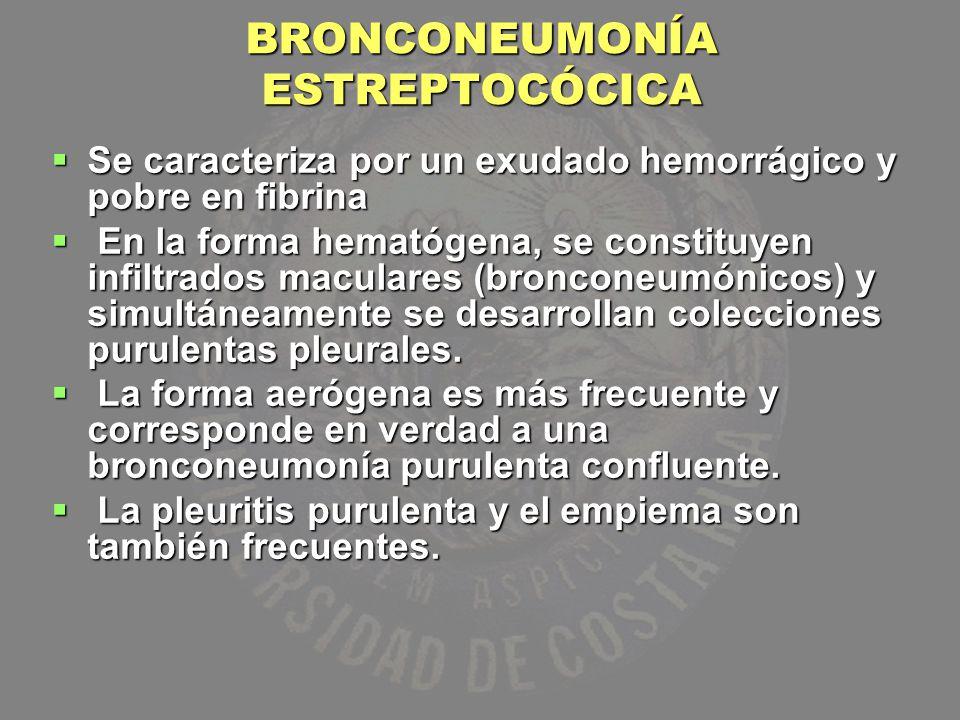 BRONCONEUMONÍA ESTREPTOCÓCICA