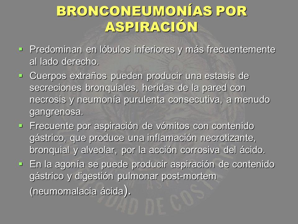 BRONCONEUMONÍAS POR ASPIRACIÓN