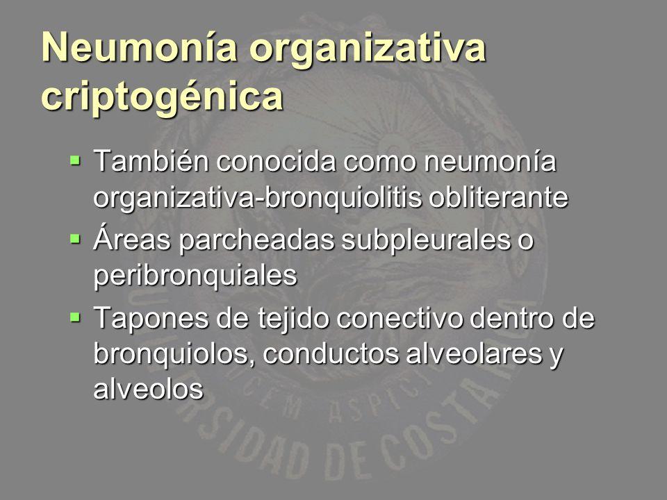 Neumonía organizativa criptogénica