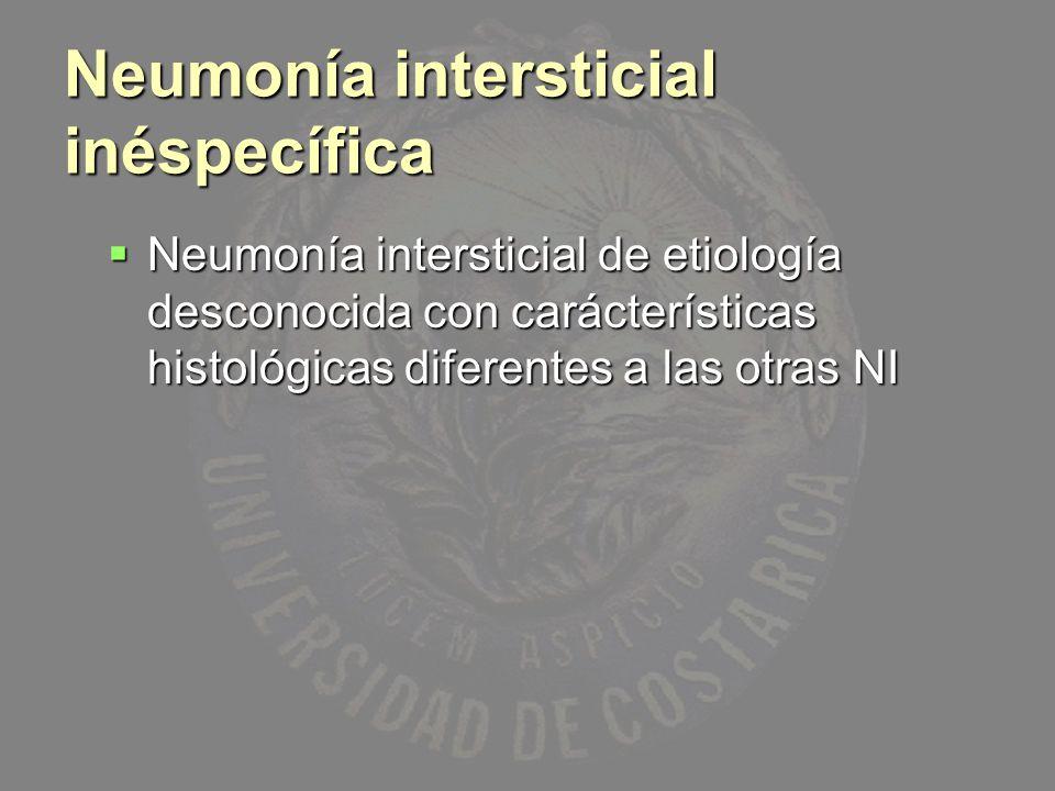 Neumonía intersticial inéspecífica