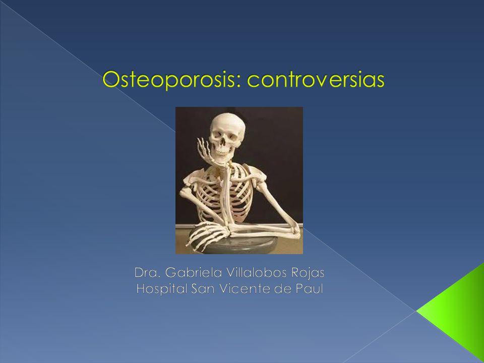 Osteoporosis: controversias