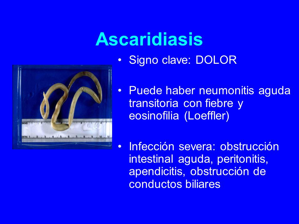 Ascaridiasis Signo clave: DOLOR