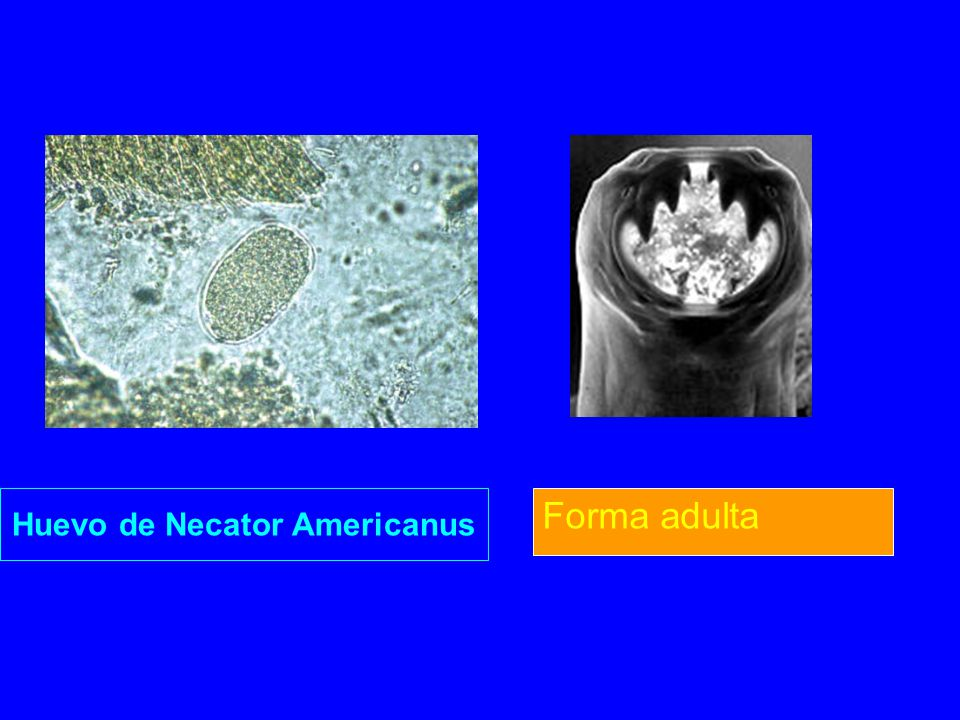 Huevo de Necator Americanus