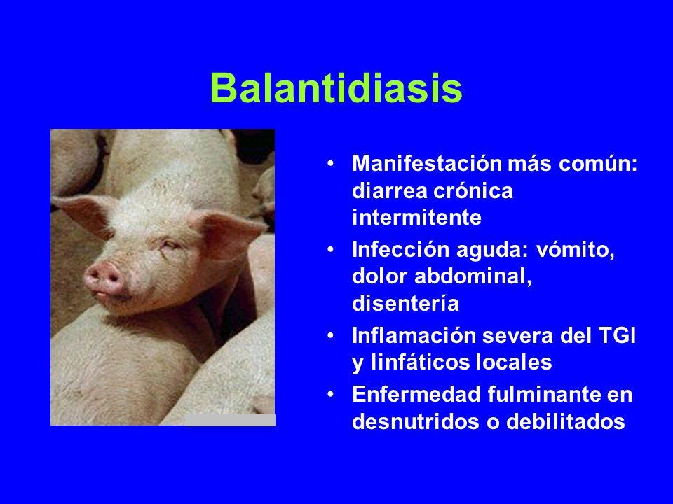 Balantidiasis Manifestación más común: diarrea crónica intermitente