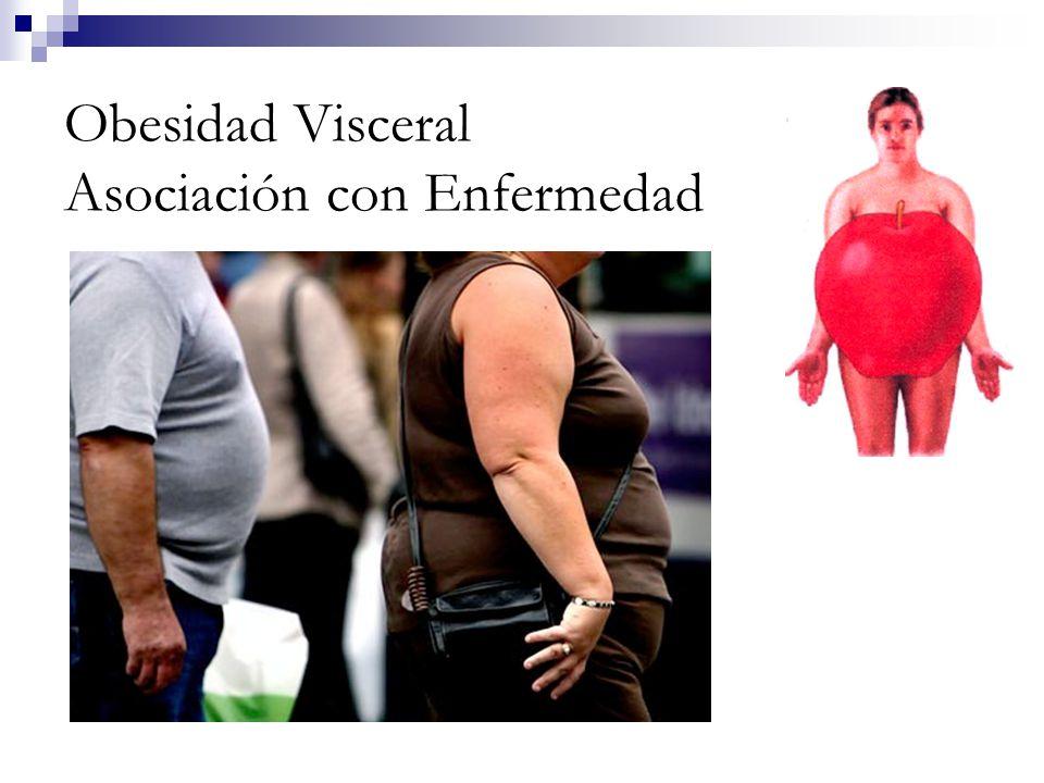 Obesidad Visceral Asociación con Enfermedad