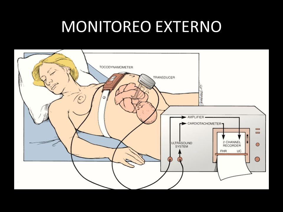 MONITOREO EXTERNO