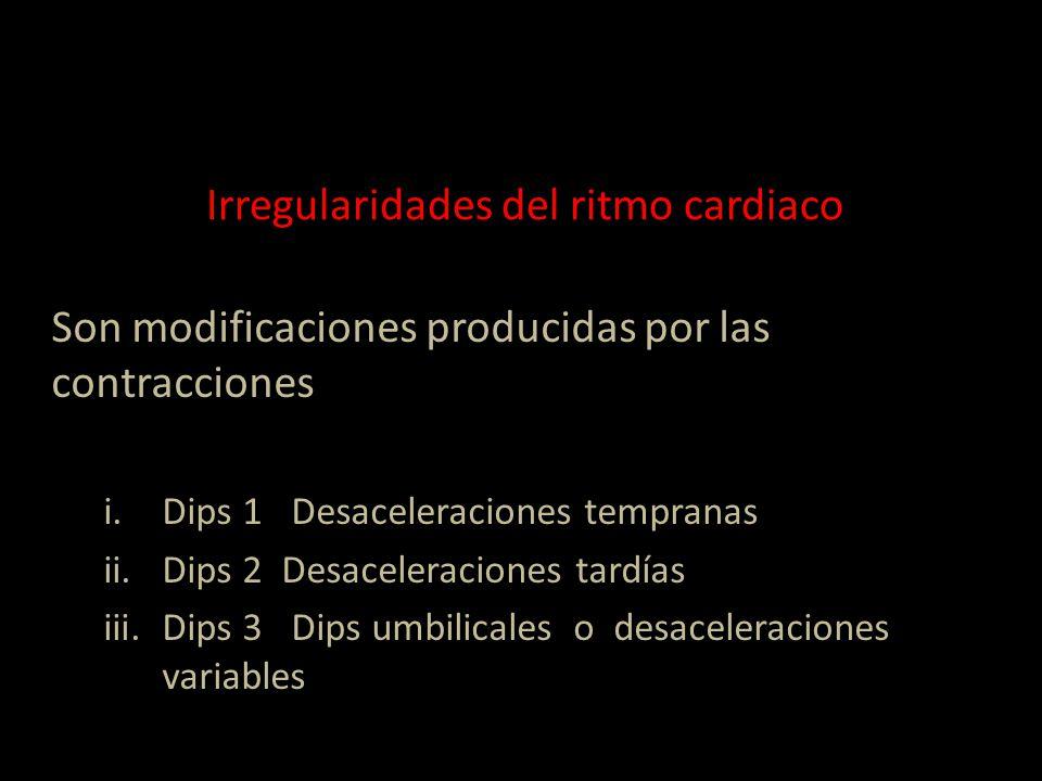 Irregularidades del ritmo cardiaco