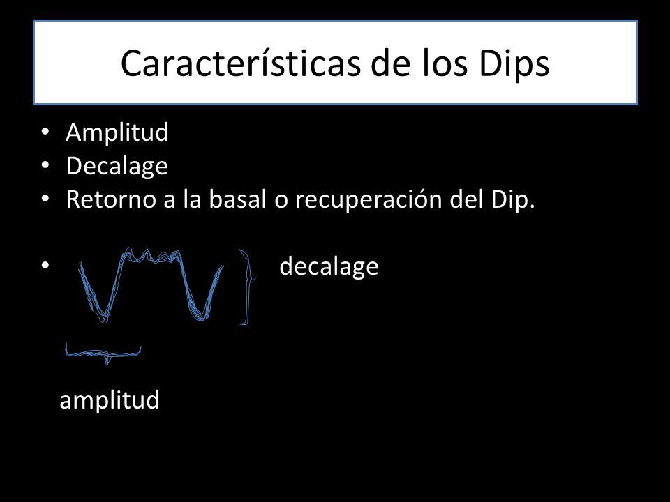 Características de los Dips