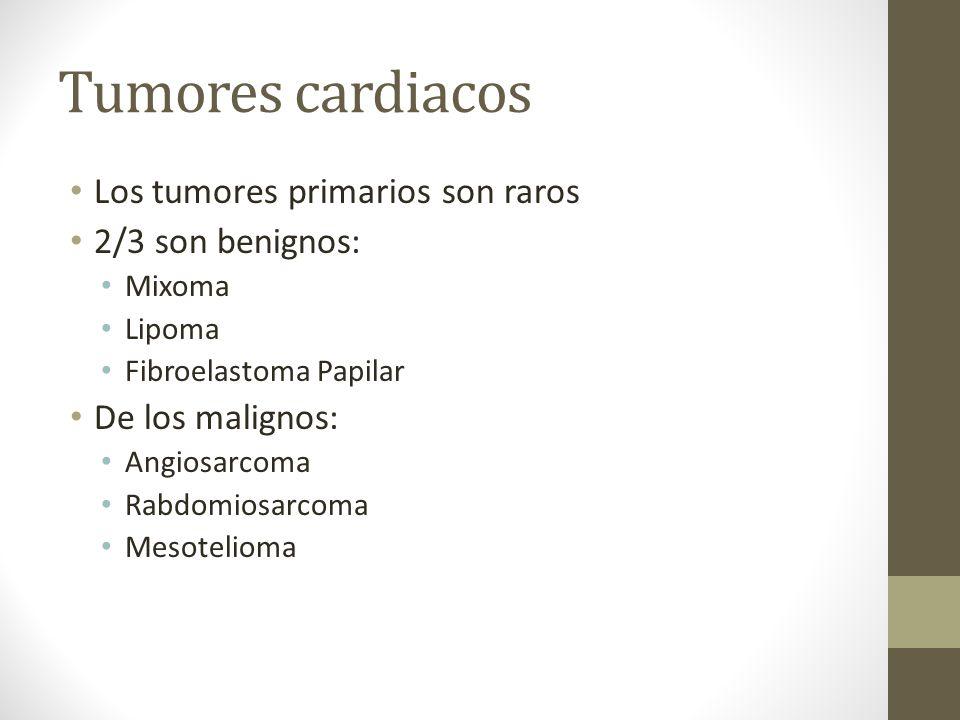 Tumores cardiacos Los tumores primarios son raros 2/3 son benignos: