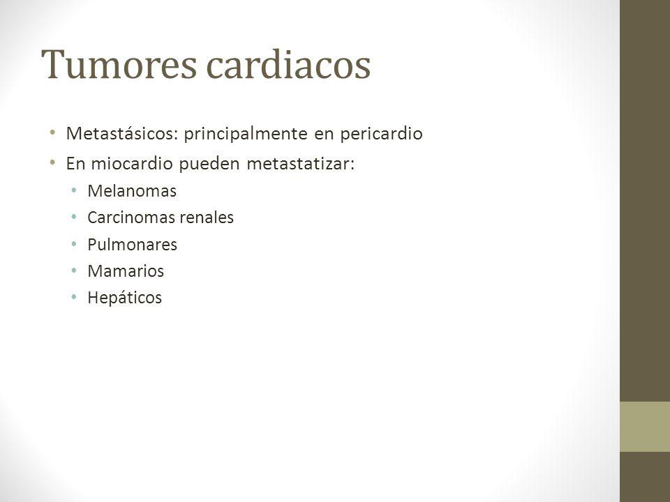 Tumores cardiacos Metastásicos: principalmente en pericardio