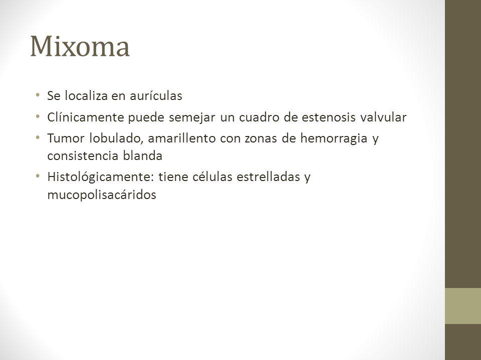 Mixoma Se localiza en aurículas