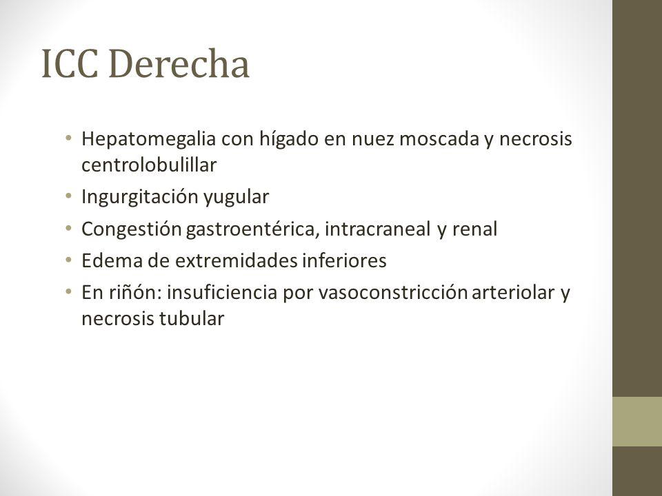 ICC Derecha Hepatomegalia con hígado en nuez moscada y necrosis centrolobulillar. Ingurgitación yugular.
