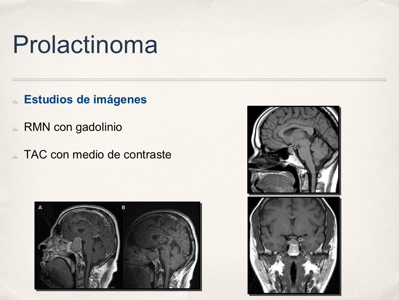 Prolactinoma Estudios de imágenes RMN con gadolinio