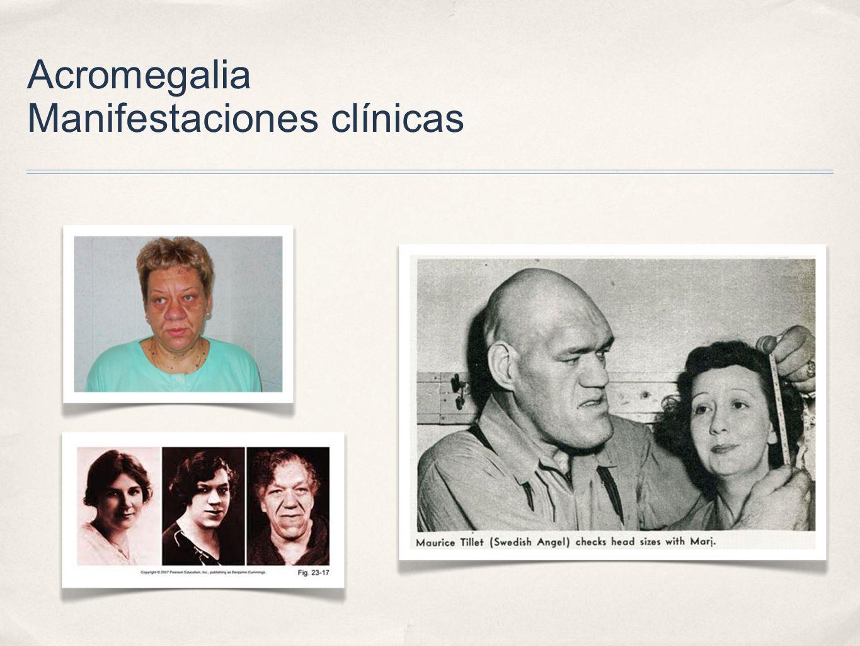 Acromegalia Manifestaciones clínicas