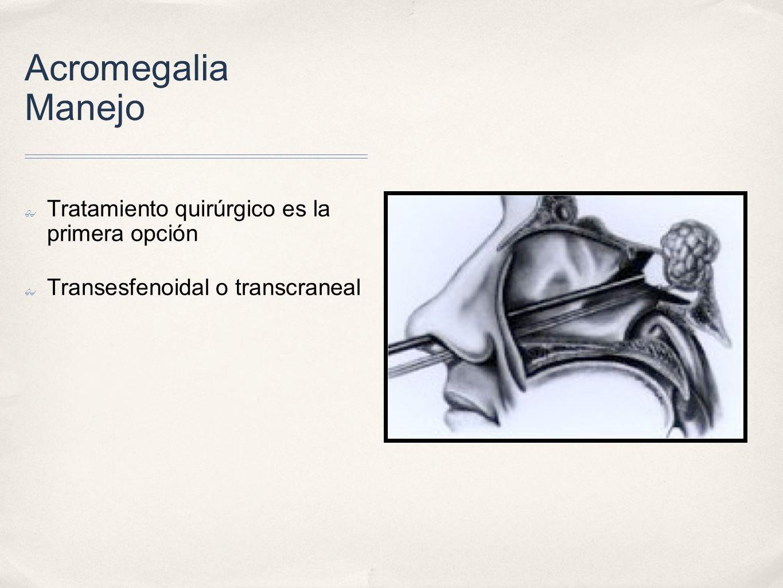 Acromegalia Manejo Tratamiento quirúrgico es la primera opción