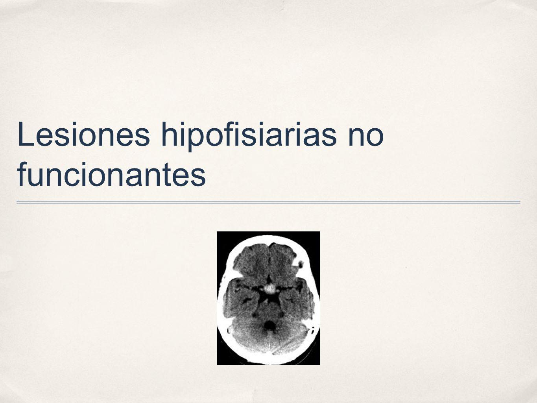 Lesiones hipofisiarias no funcionantes