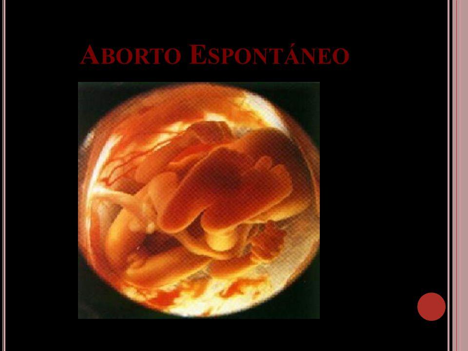 Aborto Espontáneo