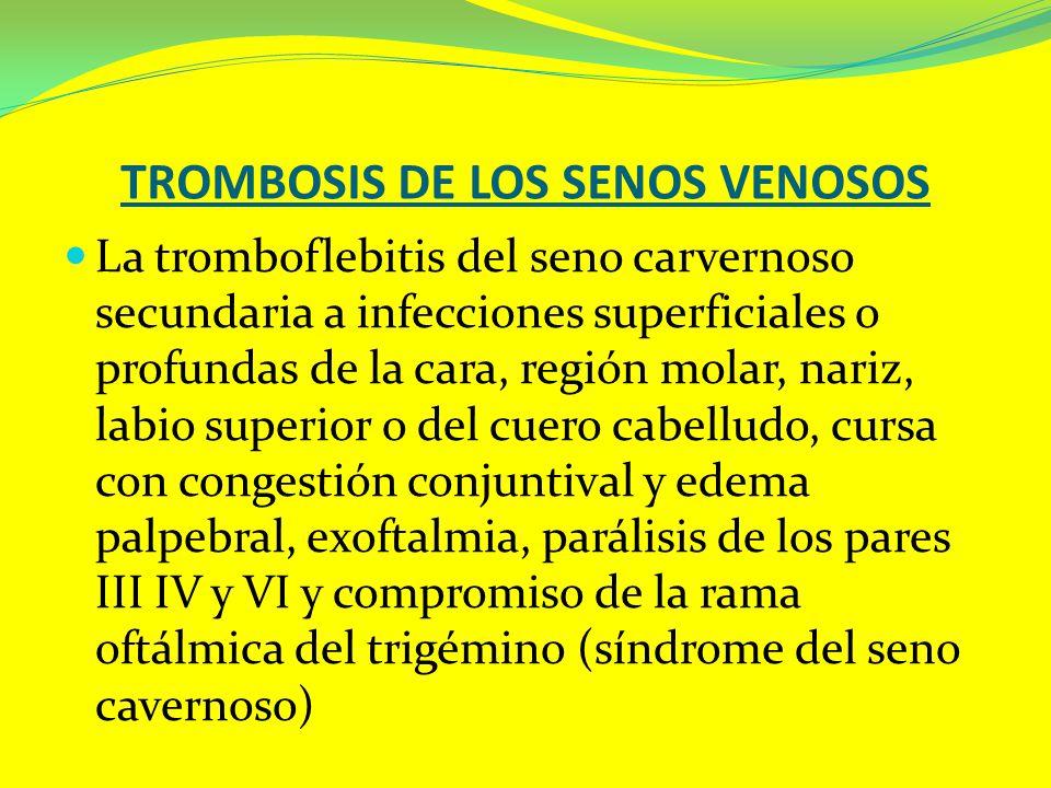 TROMBOSIS DE LOS SENOS VENOSOS