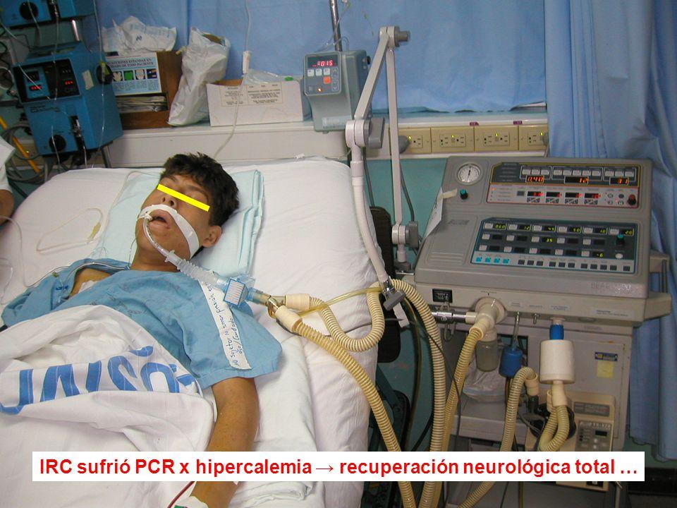 IRC sufrió PCR x hipercalemia → recuperación neurológica total …