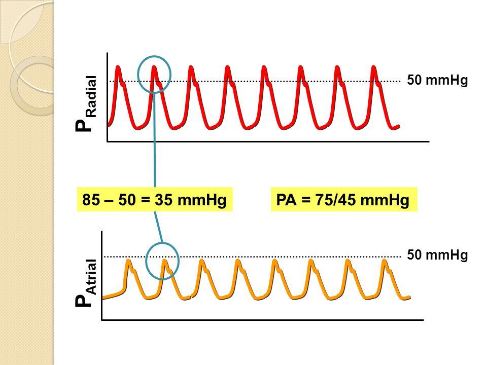 85 – 50 = 35 mmHg 50 mmHg PRadial PA = 75/45 mmHg 50 mmHg PAtrial