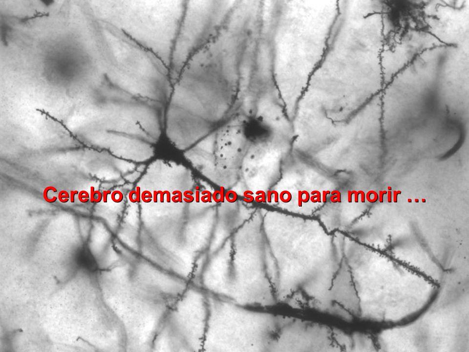 Cerebro demasiado sano para morir …