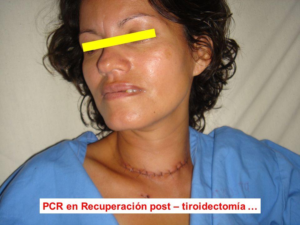 PCR en Recuperación post – tiroidectomía …
