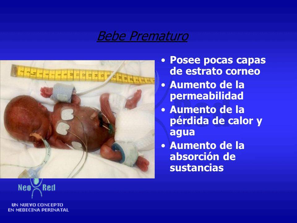 Bebe Prematuro Posee pocas capas de estrato corneo