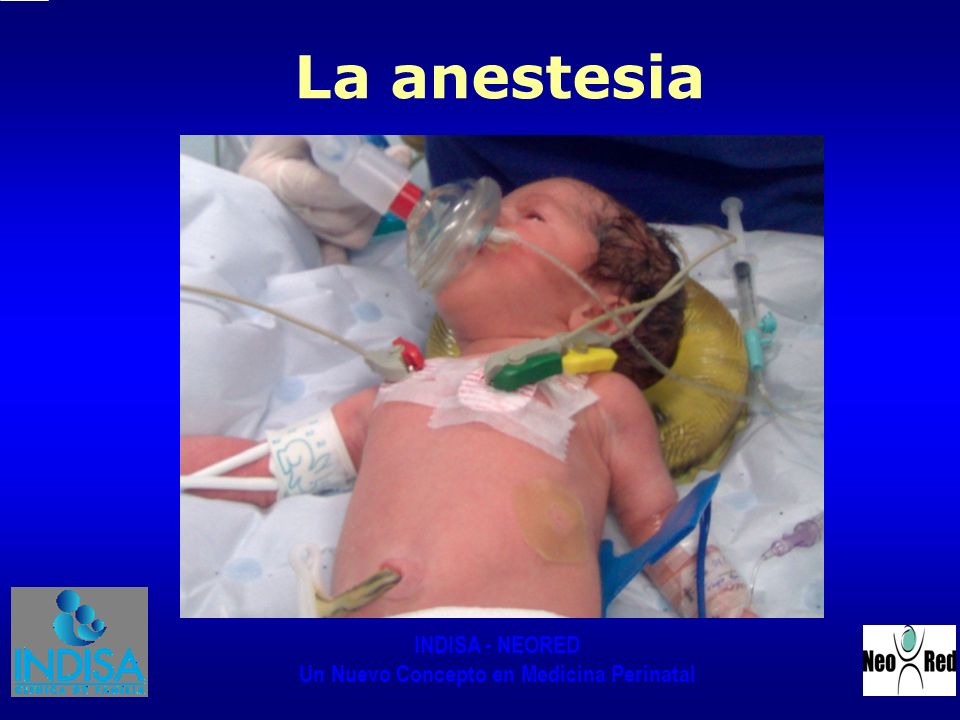 La anestesia