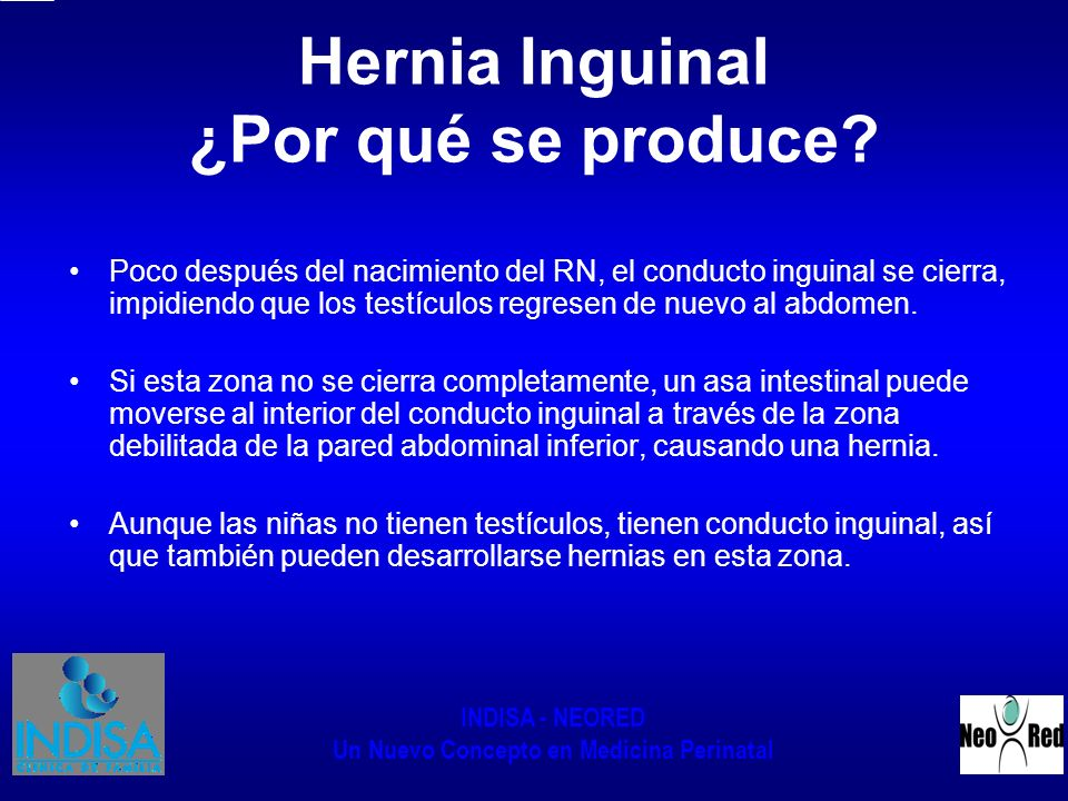 Hernia Inguinal ¿Por qué se produce