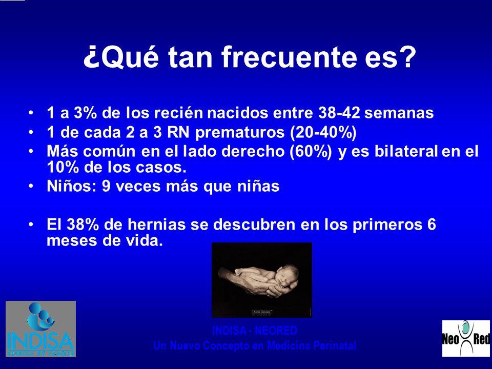 ¿Qué tan frecuente es 1 a 3% de los recién nacidos entre 38-42 semanas. 1 de cada 2 a 3 RN prematuros (20-40%)