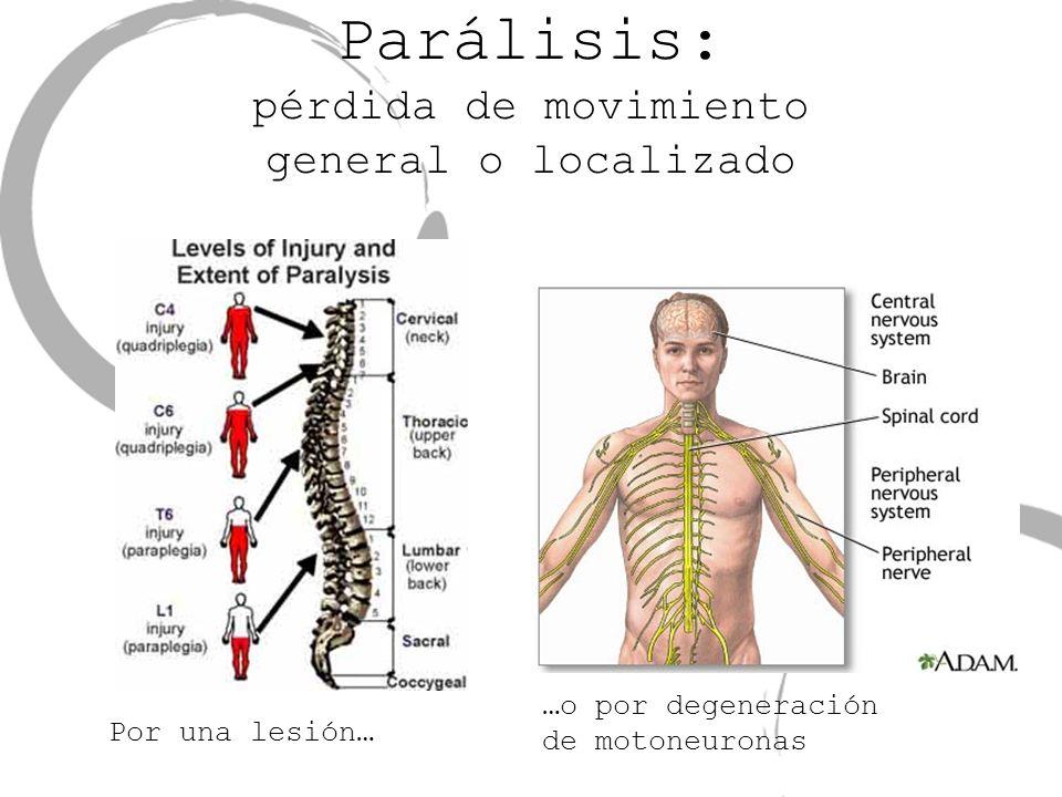Parálisis: pérdida de movimiento general o localizado