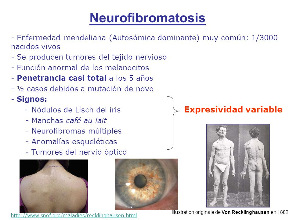 Neurofibromatosis Expresividad variable