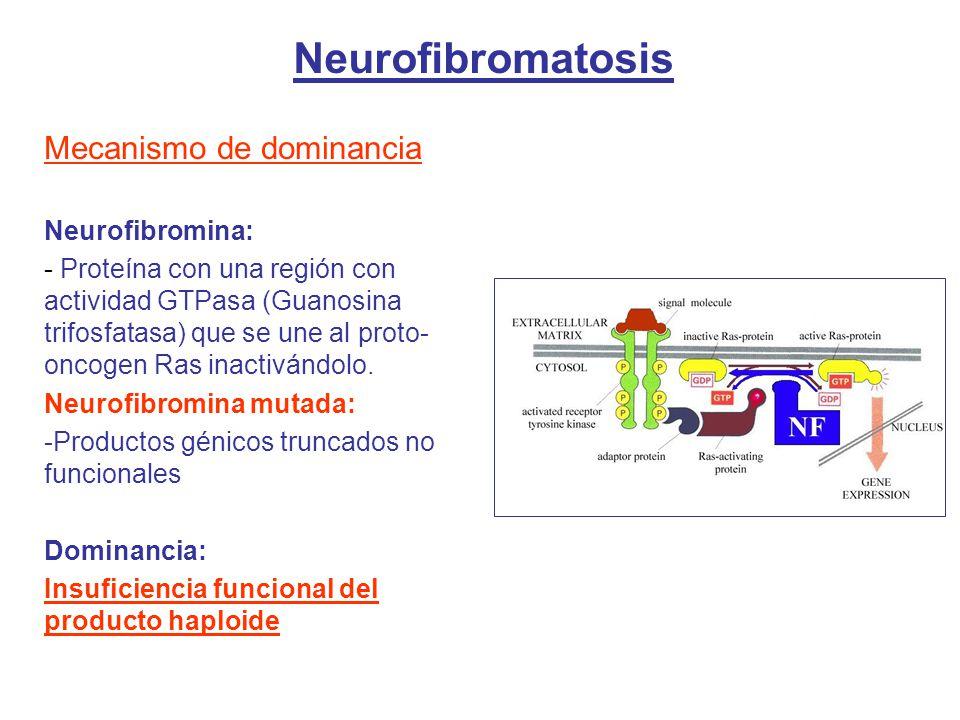 Neurofibromatosis Mecanismo de dominancia Neurofibromina: