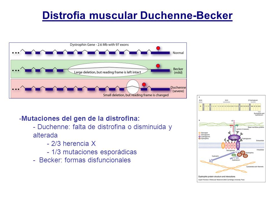 Distrofia muscular Duchenne-Becker