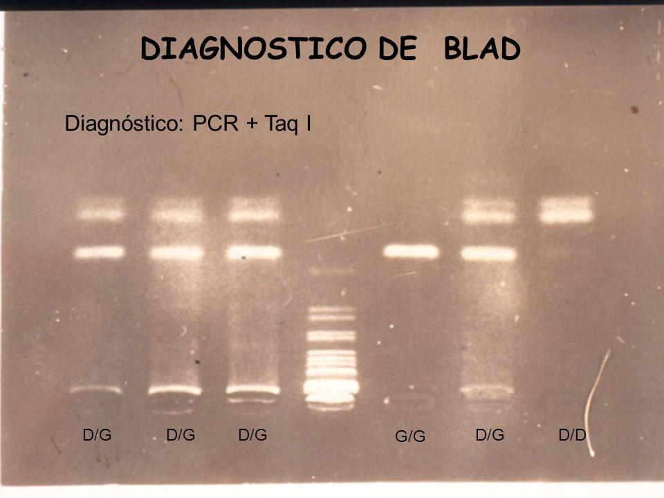 DIAGNOSTICO DE BLAD Diagnóstico: PCR + Taq I D/G D/G D/G G/G D/G D/D