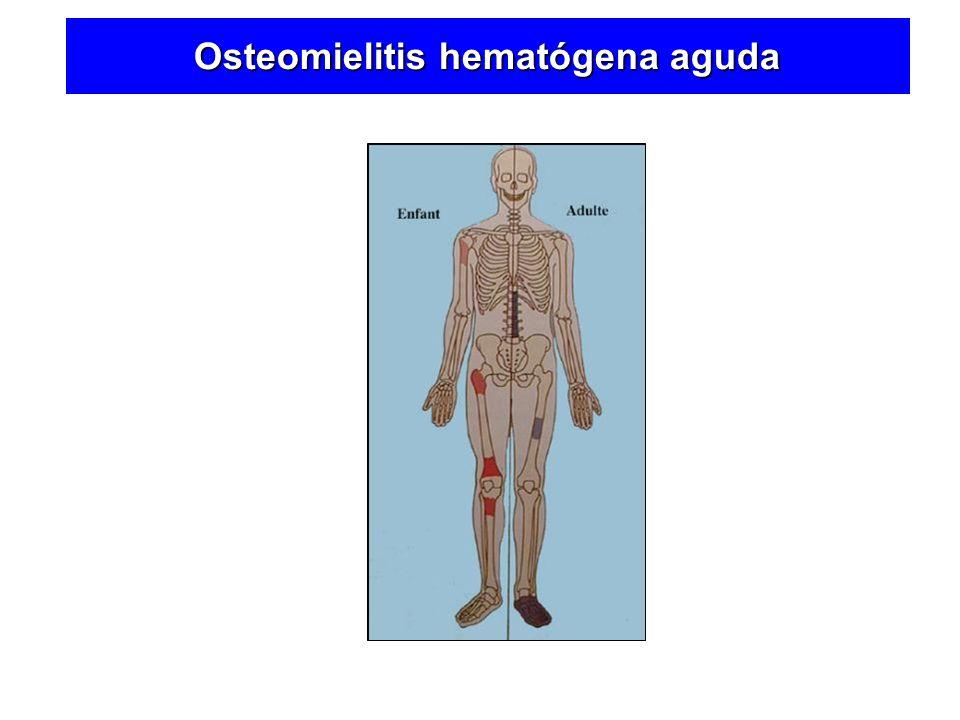 Osteomielitis hematógena aguda