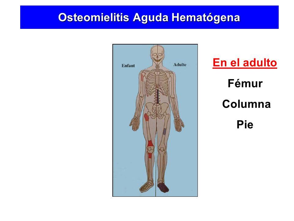 Osteomielitis Aguda Hematógena